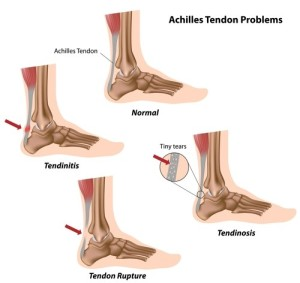 Treatment of Achilles Tendonitis at the London Shockwave Clinic